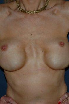 Correction mammaire vue de face avant