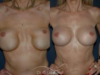 Correction mammaire vue de face duo