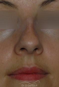 Correction os trop pincés et bosse en Rhinoplastie Secondaire vue de face avant