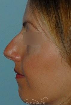 Correction os trop pincés et bosse en Rhinoplastie Secondaire vue de profil avant