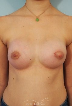 Correction seins tubéreux par prothèses vue de face apres