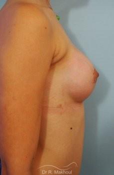 Correction seins tubéreux par prothèses vue de profil apres