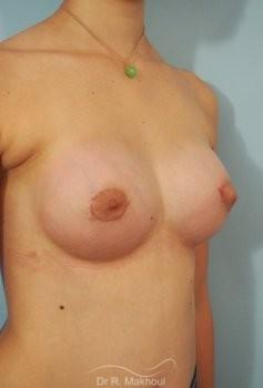 Correction seins tubéreux par prothèses vue de quart apres