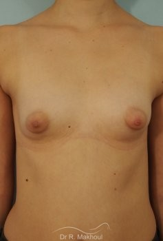 Correction seins tubéreux par prothèses vue de face avant