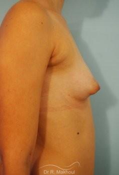 Correction seins tubéreux par prothèses vue de profil avant
