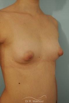 Correction seins tubéreux par prothèses vue de quart avant