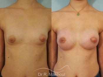 Correction seins tubéreux par prothèses vue de face duo