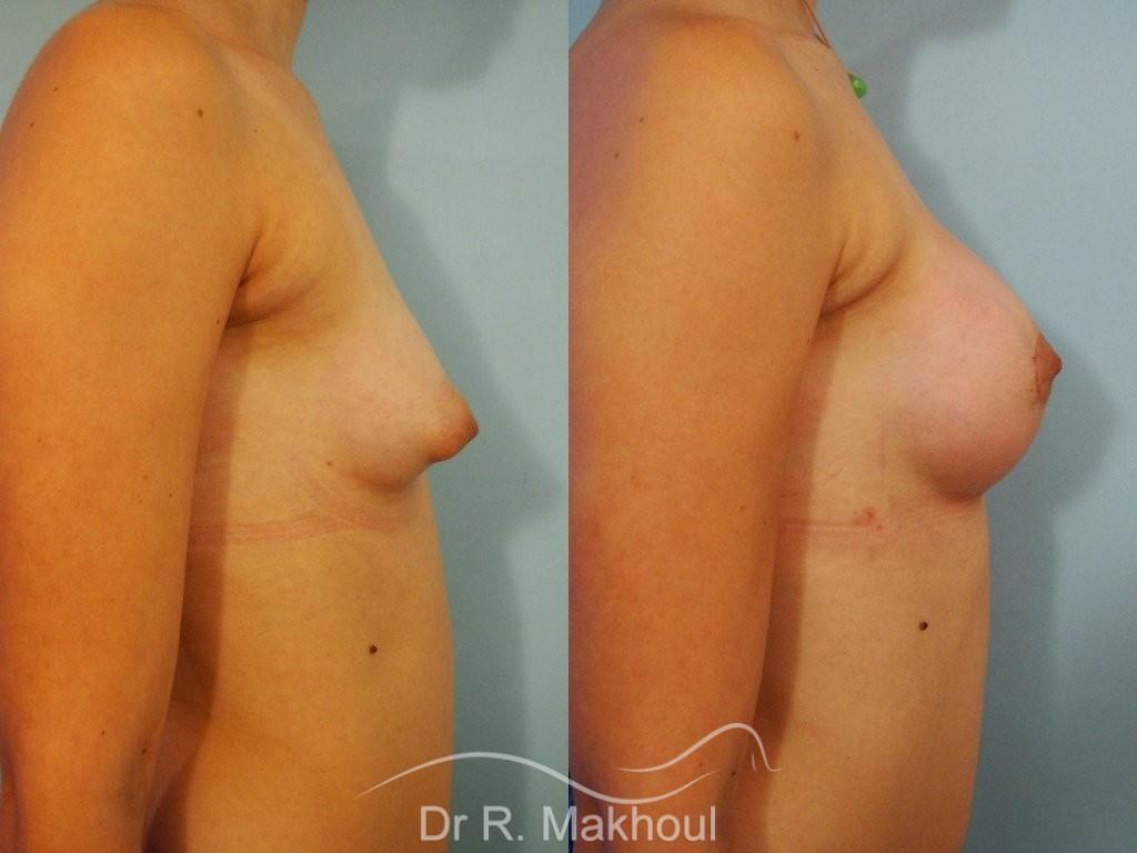 Correction seins tubéreux par prothèses vue de profil duo