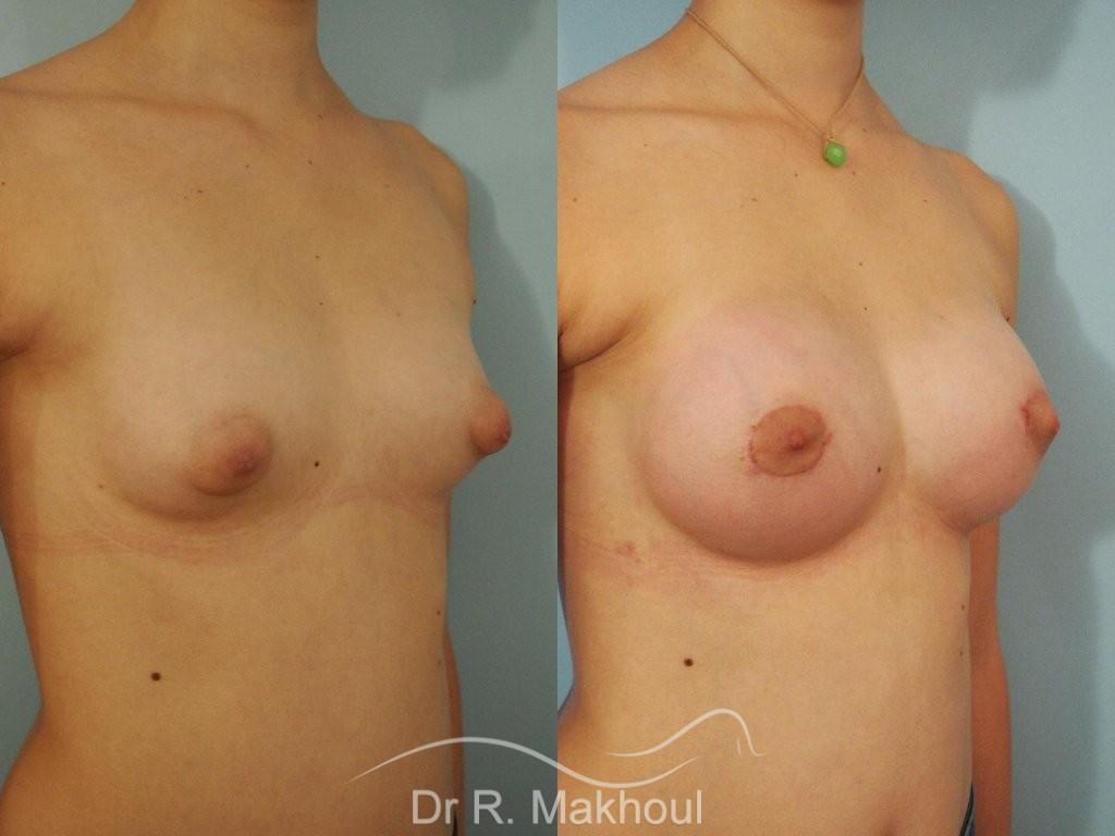 Correction seins tubéreux par prothèses vue de quart duo
