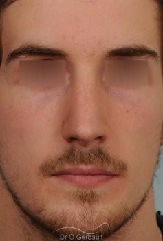 Déviation de cloison et obstruction nasale vue de face apres
