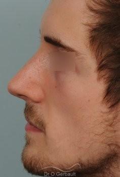 Déviation de cloison et obstruction nasale vue de profil apres