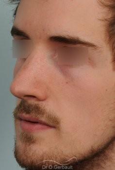 Déviation de cloison et obstruction nasale vue de quart apres