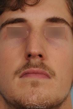 Déviation de cloison et obstruction nasale vue de face avant