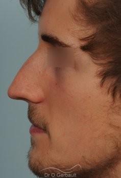 Déviation de cloison et obstruction nasale vue de profil avant