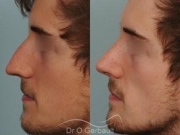 Déviation de cloison et obstruction nasale vue de profil duo