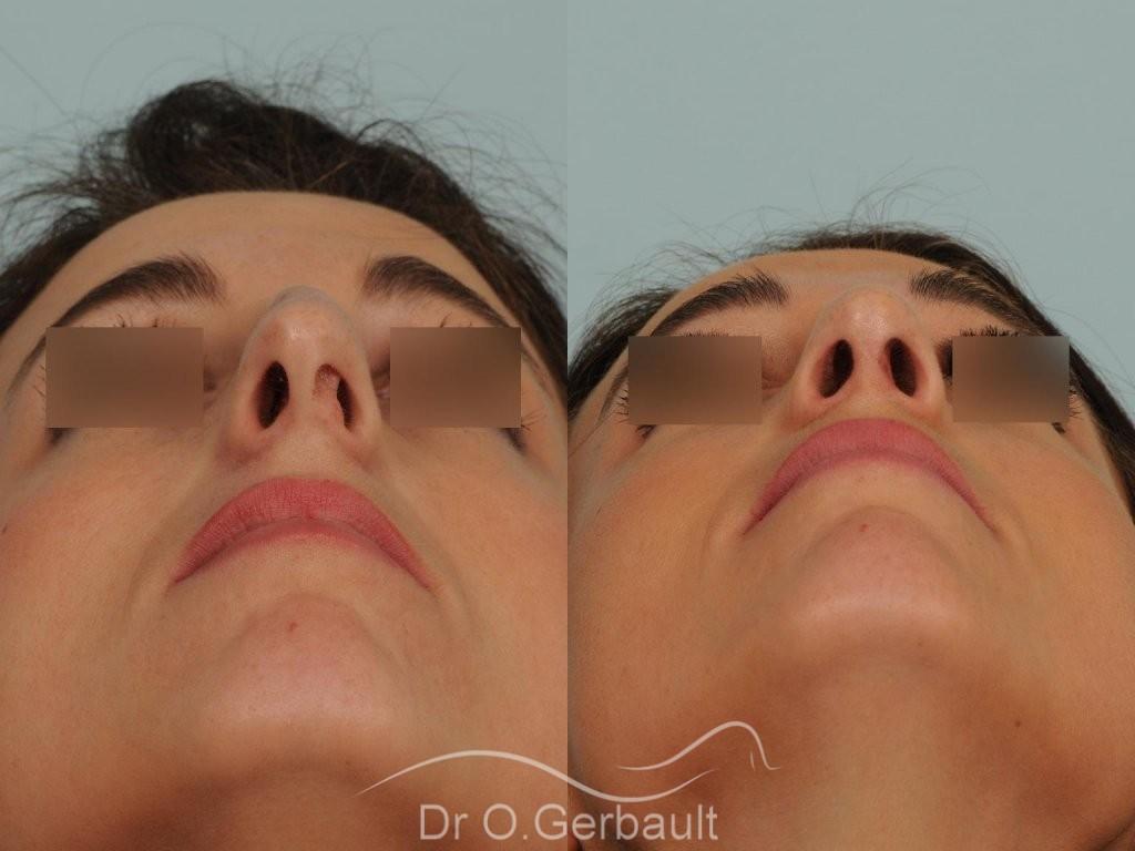 Déviation de cloison nasale sur nez un peu fort vue de face duo