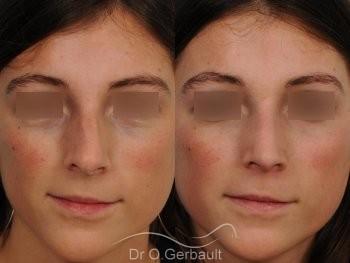 Déviation de la cloison et asymétrie vue de face duo
