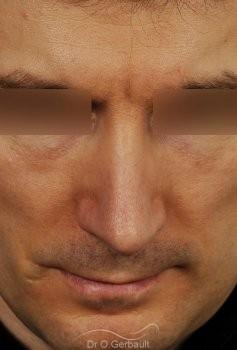 Déviation de la cloison nasale vue de face apres