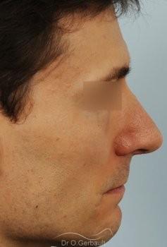 Déviation de la cloison nasale vue de profil apres