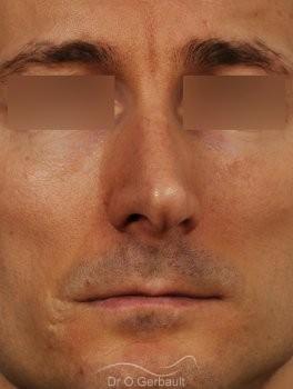 Déviation de la cloison nasale vue de face avant