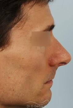 Déviation de la cloison nasale vue de profil avant