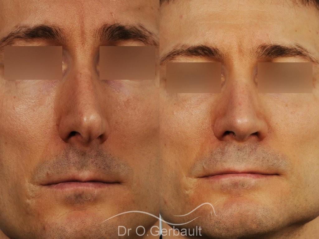 Déviation de la cloison nasale vue de face duo