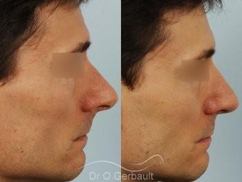 Déviation de la cloison nasale vue de profil duo