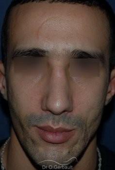 Déviation et bosse sur le nez vue de face apres