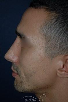 Déviation et bosse sur le nez vue de profil apres