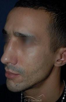 Déviation et bosse sur le nez vue de quart apres
