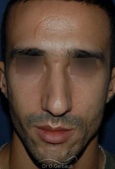 Déviation et bosse sur le nez vue de face avant