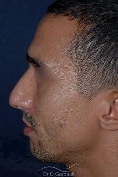 Déviation et bosse sur le nez vue de profil avant