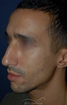 Déviation et bosse sur le nez vue de quart avant