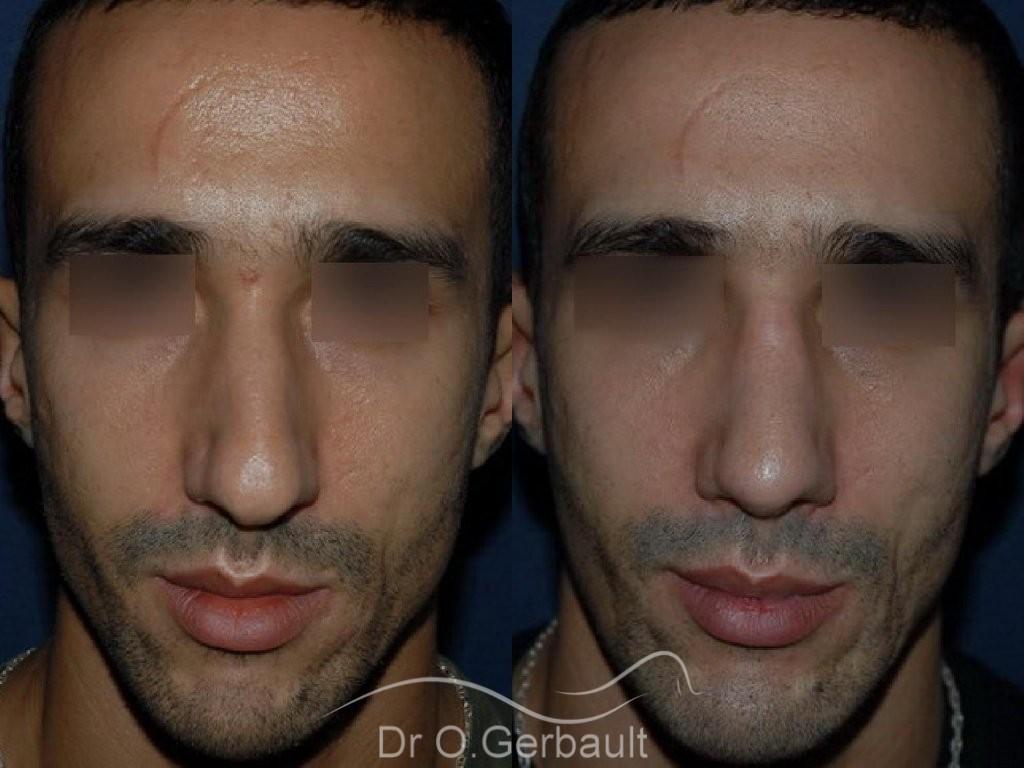 Déviation et bosse sur le nez vue de face duo