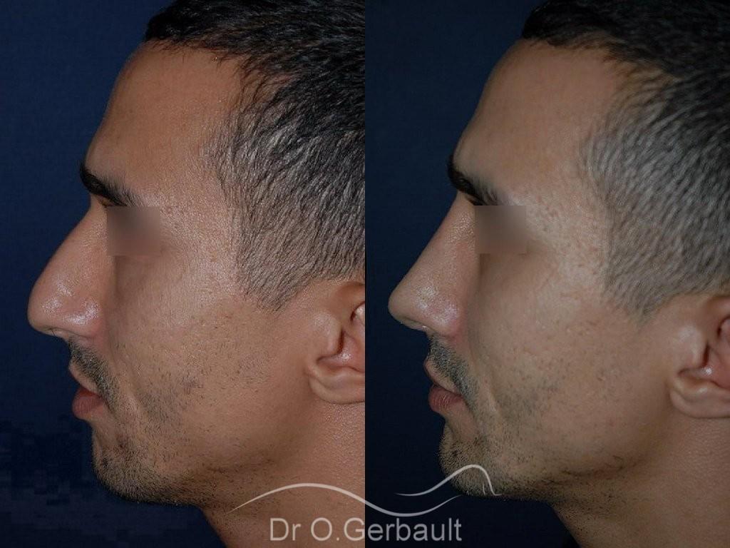 Déviation et bosse sur le nez vue de profil duo