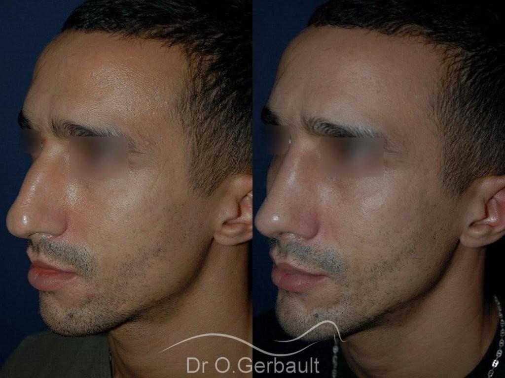 Déviation et bosse sur le nez vue de quart duo