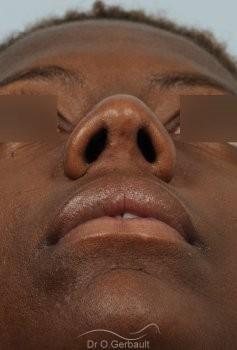 Épatement des ailes et pointe de nez vue de face apres