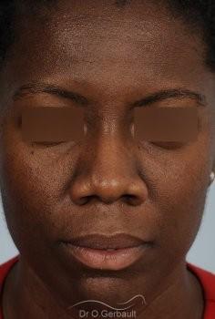 Épatement des ailes et pointe de nez vue de face avant