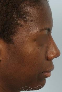 Épatement des ailes et pointe de nez vue de profil apres