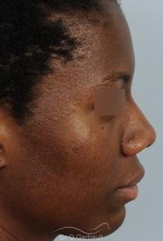 Épatement des ailes et pointe de nez vue de profil avant