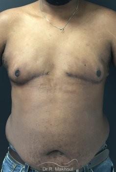 Gynécomastie après perte de poids vue de face apres