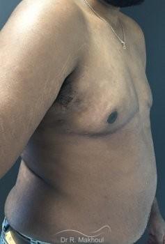 Gynécomastie après perte de poids vue de profil apres