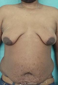 Gynécomastie après perte de poids vue de face avant