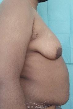 Gynécomastie après perte de poids vue de profil avant