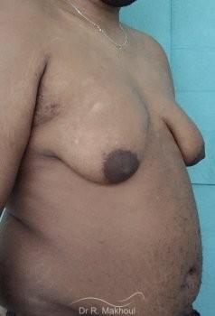 Gynécomastie après perte de poids vue de quart avant