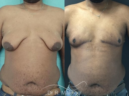 Gynécomastie après perte de poids vue de face duo