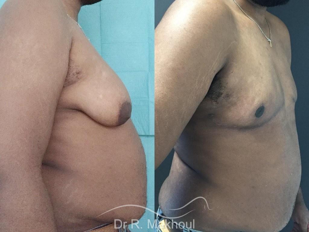 Gynécomastie après perte de poids vue de profil duo