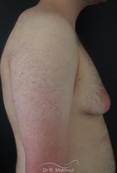 Gynécomastie tubéreuse vue de profil avant