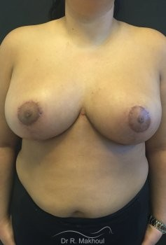 Hypertrophie mammaire vue de face apres