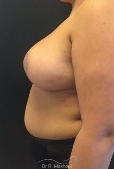 Hypertrophie mammaire vue de profil apres